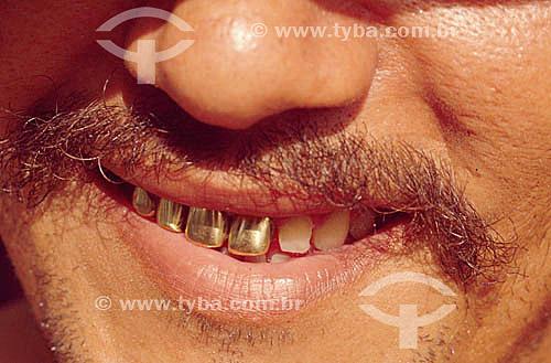 Detalhe de dentes de ouro - Garimpeiro