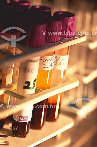 Laboratório -  recipientes ou tubos de ensaio usados em exames