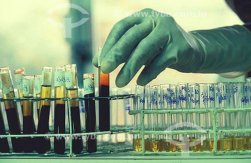 Laboratório -  mão segurando tubo de ensaio