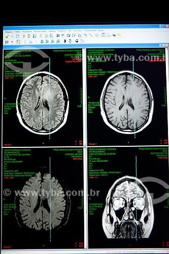 Assunto: Ressonância magnética no INCA - Instituto Nacional do Câncer   / Local:  Praça da Cruz Vermelha - Centro - RJ  / Data: 09-2010