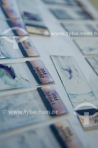 Assunto: Lâminas com sangue para pesquisa de laboratório no DIPAT - INCA - Instituto Nacional do Câncer   / Local:  São Cristóvão, RJ  / Data: 09-2010