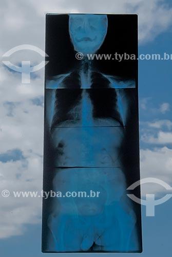 Assunto: Radiografia anexada em vidro de clinica de fisioterapia / Local: Rio de Janeiro (RJ) - Brasil / Data: 09/2007