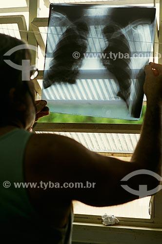 Homem observando radiografia - assistência médica na tribo Xavante  - Campinápolis - Mato Grosso - Brasil