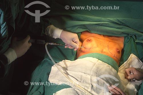 Cirurgia de reconstrução mamária no Hospital Mário Kroeff - década de 2000  - Rio de Janeiro - Rio de Janeiro (RJ) - Brasil