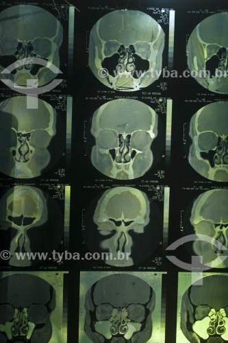 Tomografia da cabeça - Canela - Rio Grande do Sul (RS) - Brasil