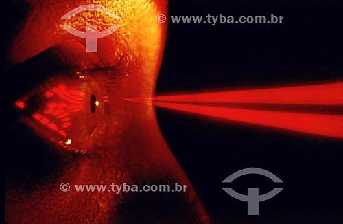 Cirurgia a laser nos olhos