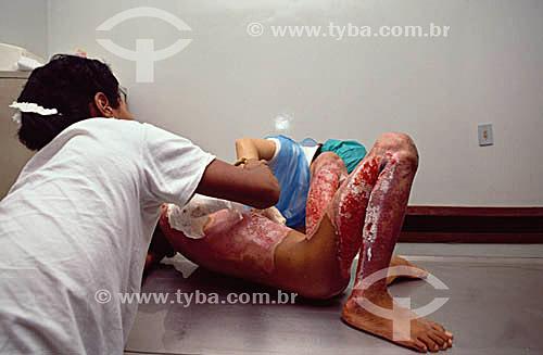 Hospital - Saúde - Medicina - Menor carente de rua sendo tratado de queimaduras por todo o corpo
