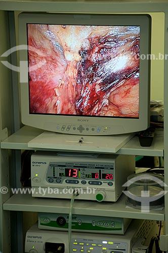 Assunto:  Hospital Federal de Ipanema - centro cirúrgico - cirurgia urológica - Tela de cirurgia videolaparoscópica.  / Local: Hospital Federal de Ipanema - Rio de Janeiro - RJ / Data: 10/2010