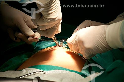Assunto: Hospital Federal de Ipanema - centro cirurgico - Ginecologia - procedimento de videolaparoscopia diagnostica.  / Local: Hospital Federal de Ipanema - Rio de Janeiro - RJ / Data: 10/2010