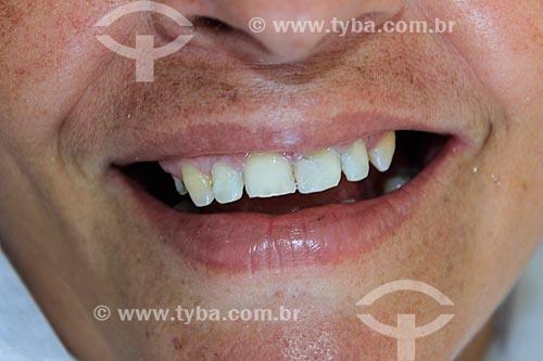 Atendimento odontológico do Projeto Doutores sem Fronteiras - projeto de trabalho voluntário na Região Norte  - Porto Velho - Rondônia (RO) - Brasil