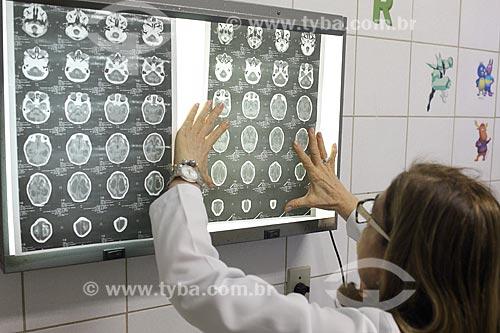 Médica do Hospital Universitário Oswaldo Cruz (HUOC) com ressonância magnética de bebes com microcefalia  - Recife - Pernambuco (PE) - Brasil